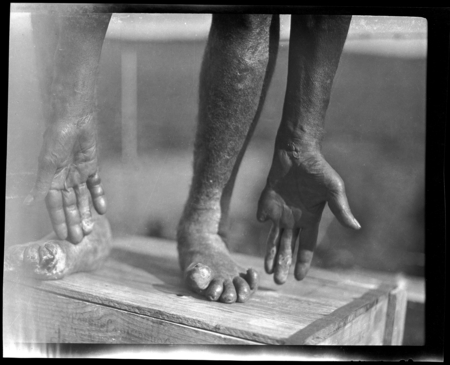 Hands and feet, damaged by leprosy.